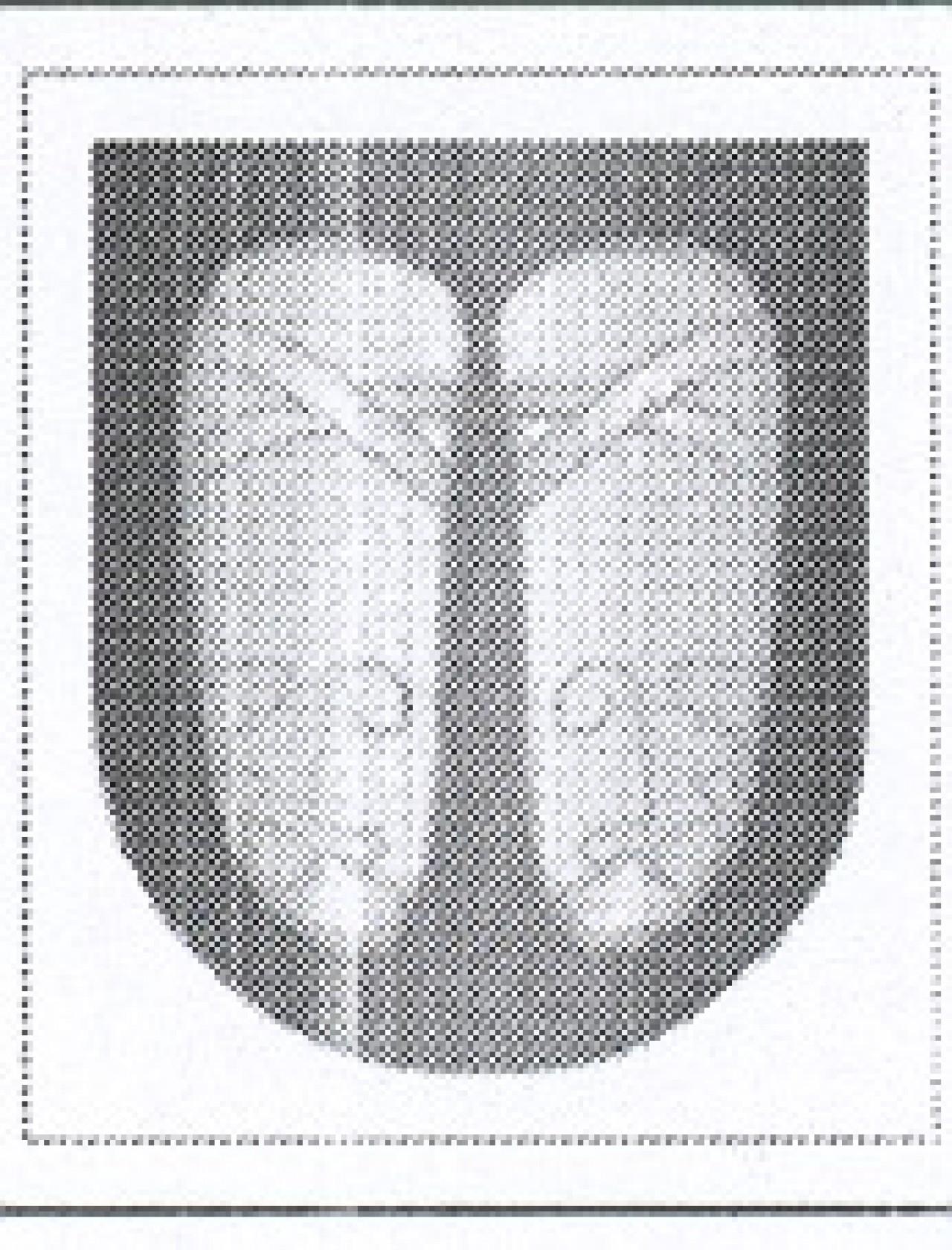 34-escudo-con-abarcas